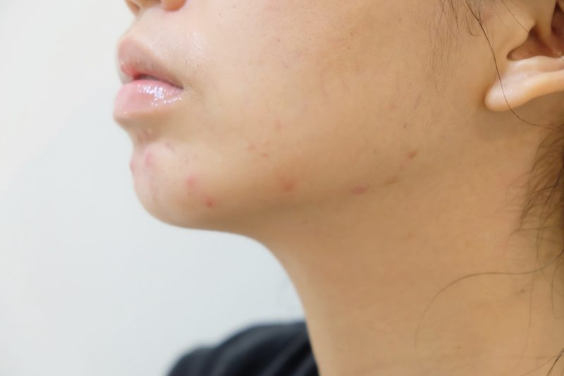 How I Got Rid of My Closed Comedones/Small Bumps on My